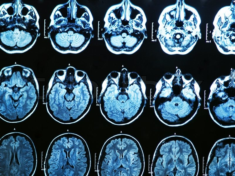 brain scans to determine the different states in the brain that correspond to compassion.